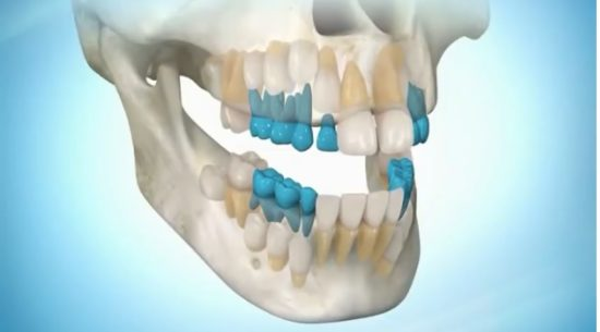 Практика-онлайн: регенерация новых, молодых зубов