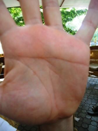 Как показано на фото, линия сердца отсутствует