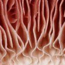 Если хотите, чтобы Ваш организм был свободен от грибов, больше не кормите их!